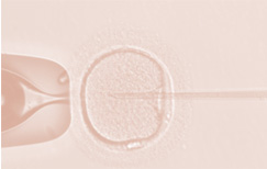 Intra Cytoplasmic Sperm Injection (ICSI) Treatment in Chennai